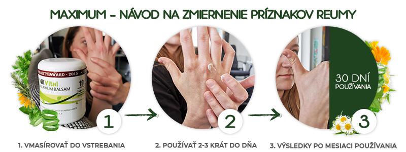 hillvital-prirodne-produkty-maximum-balzam-navod-na-pouzivanie-reuma-artroza
