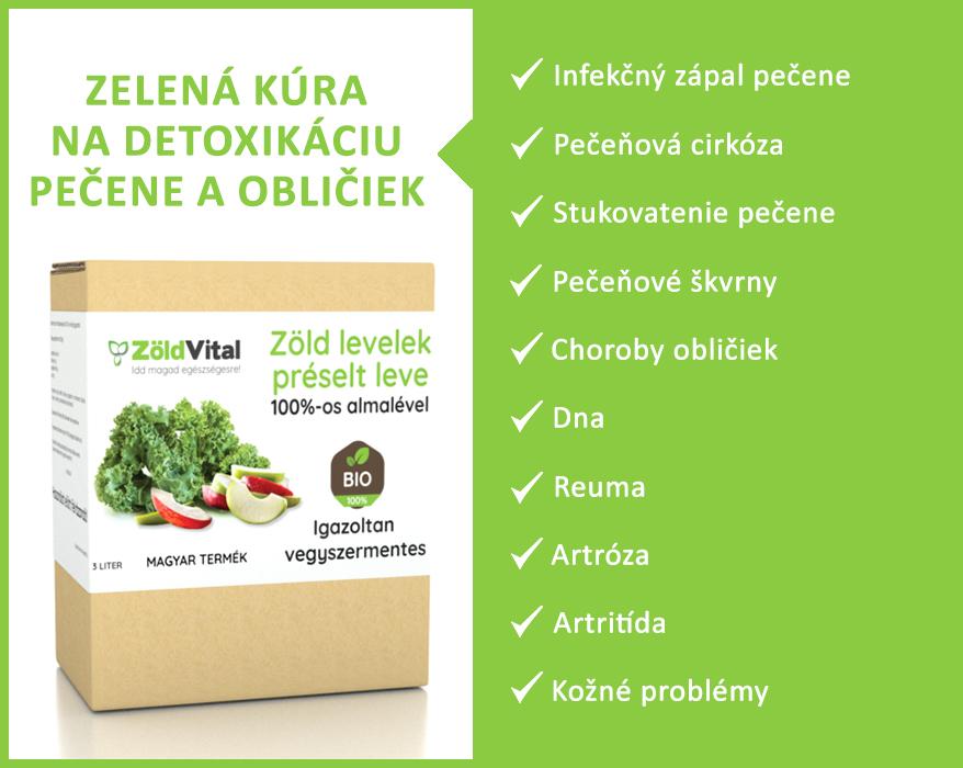 zelena-kura_1